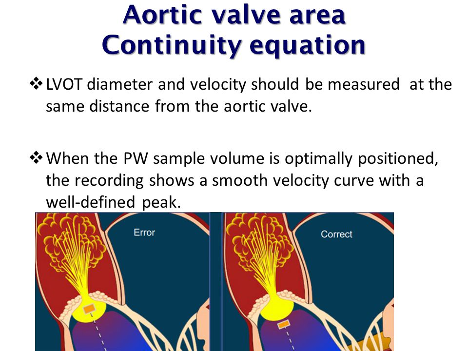 Aortic valve area Continuity equation