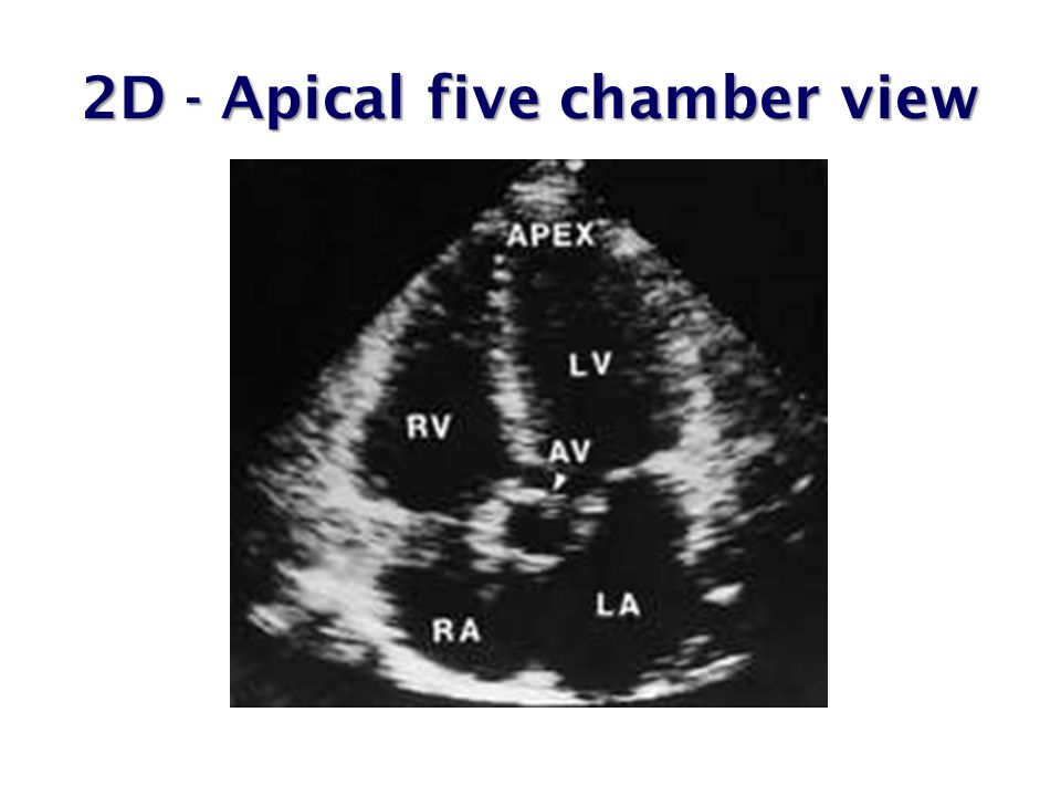 2D - Apical five chamber view