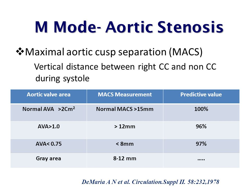 M Mode- Aortic Stenosis