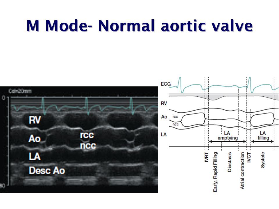M Mode- Normal aortic valve