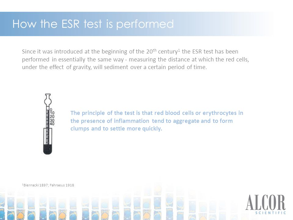 How the ESR test is performed