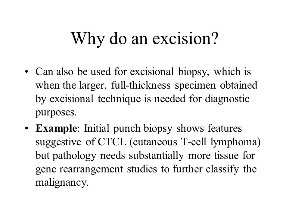 Why do an excision