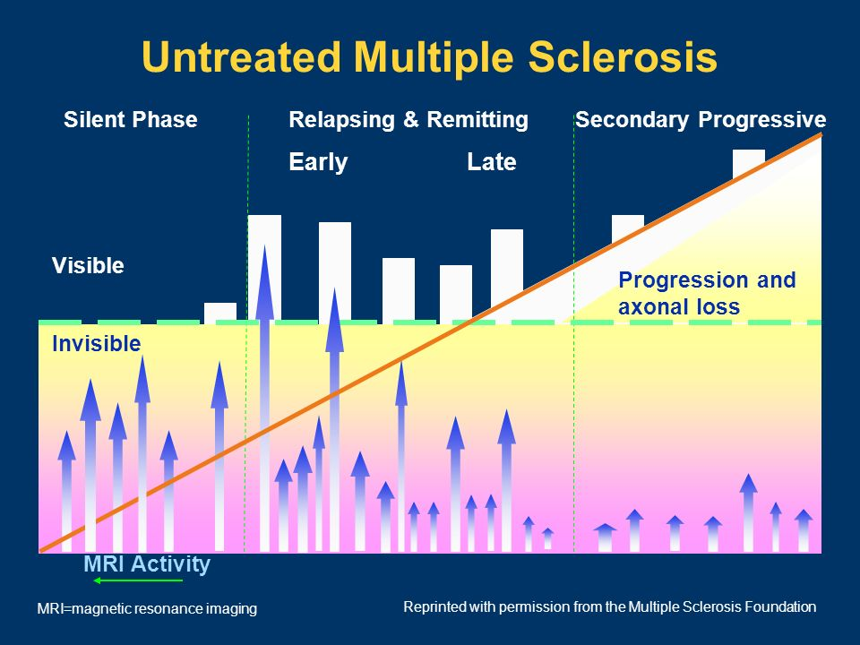 Untreated Multiple Sclerosis