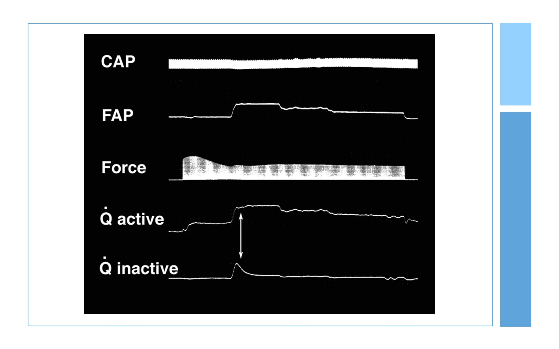 In this slide, focus on the FAP, Force, and Qactive tracings