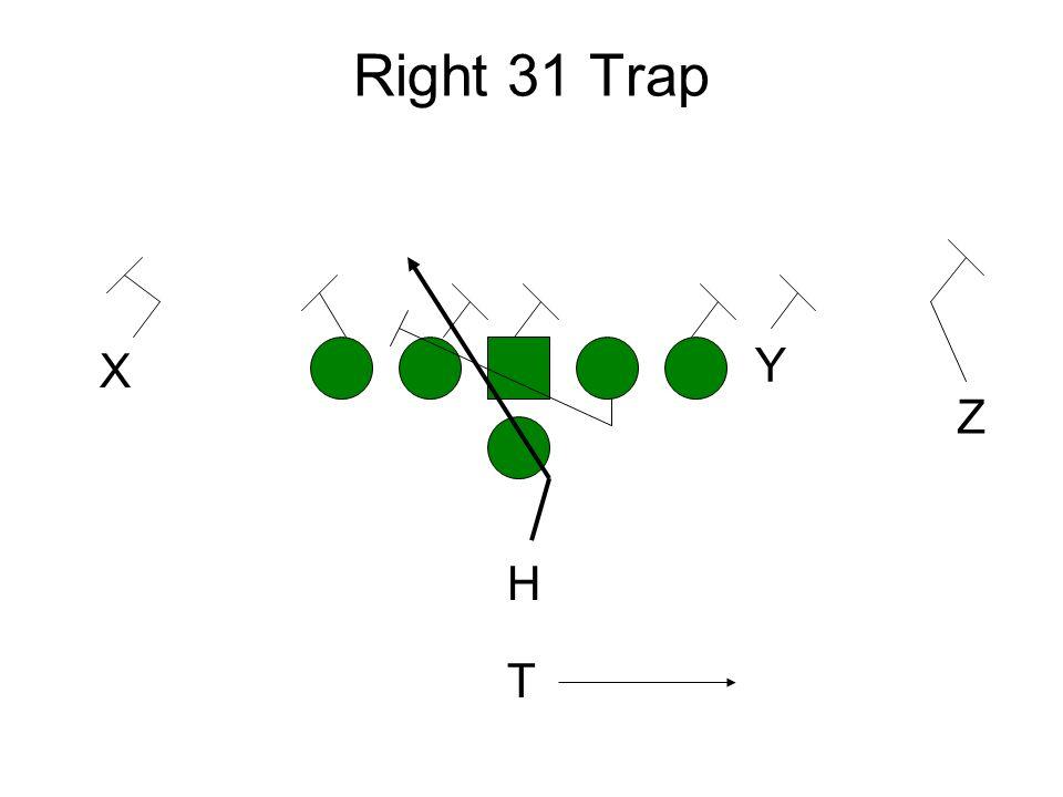 Right 31 Trap X Y Z H T