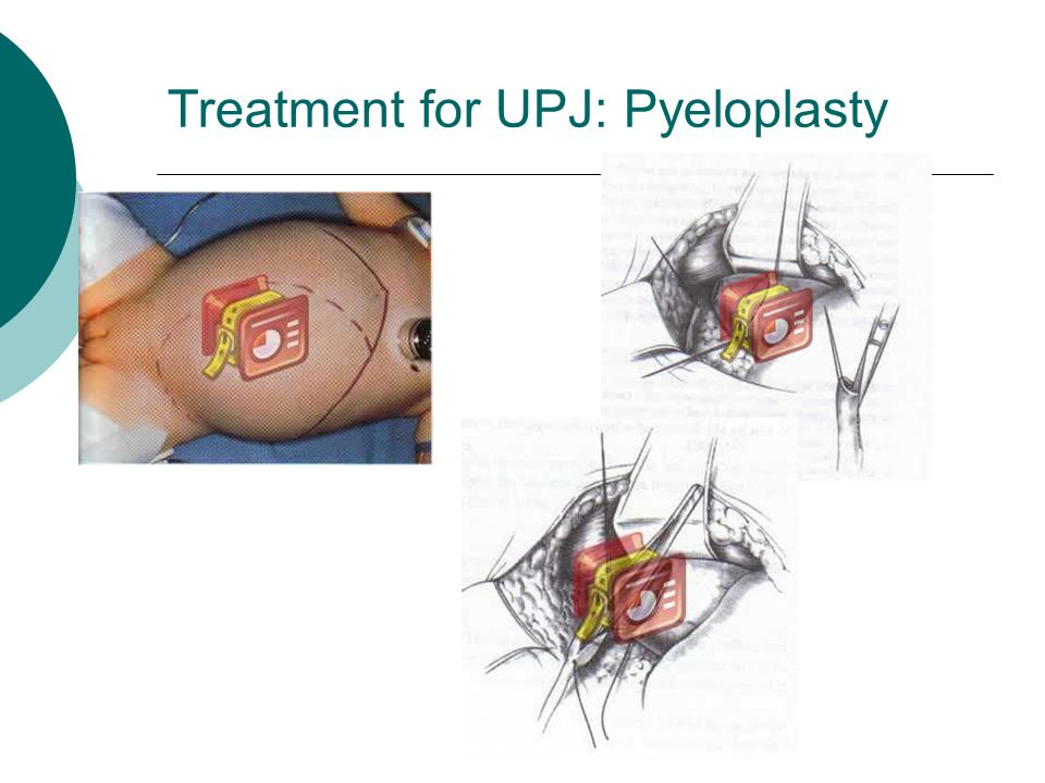 Treatment for UPJ: Pyeloplasty