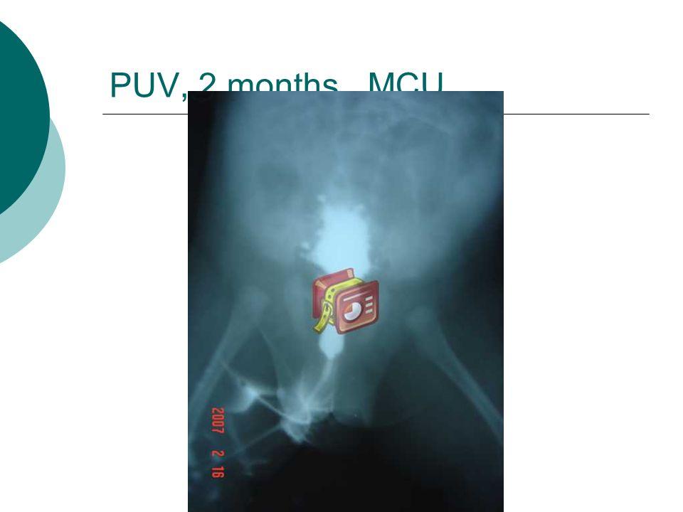 PUV, 2 months , MCU