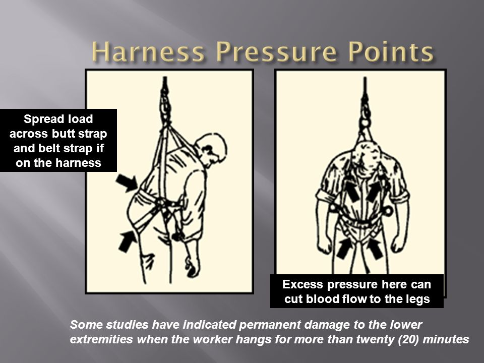 Harness Pressure Points