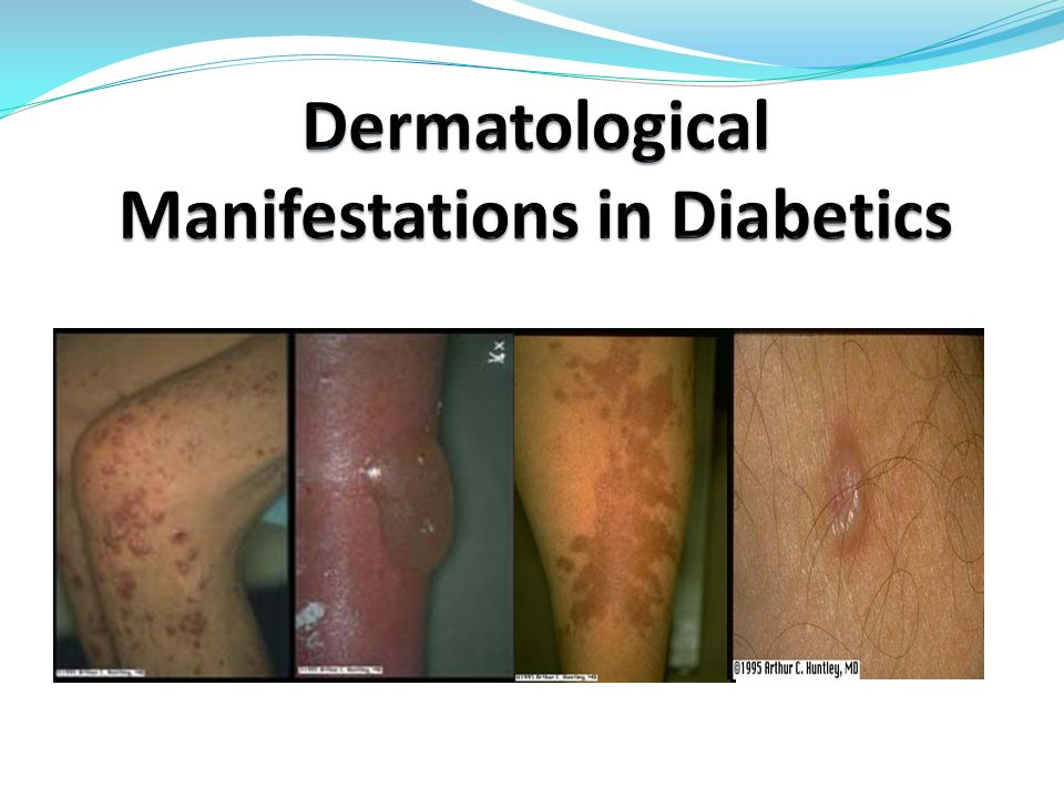 Dermatological Manifestations in Diabetics