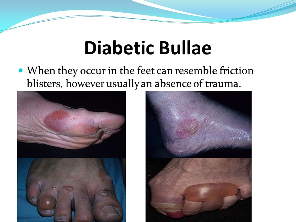 Diabetic Bullae When they occur in the feet can resemble friction blisters, however usually an absence of trauma.