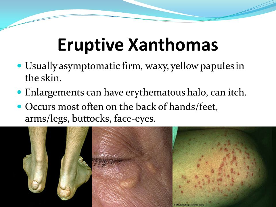 Eruptive Xanthomas Usually asymptomatic firm, waxy, yellow papules in the skin. Enlargements can have erythematous halo, can itch.