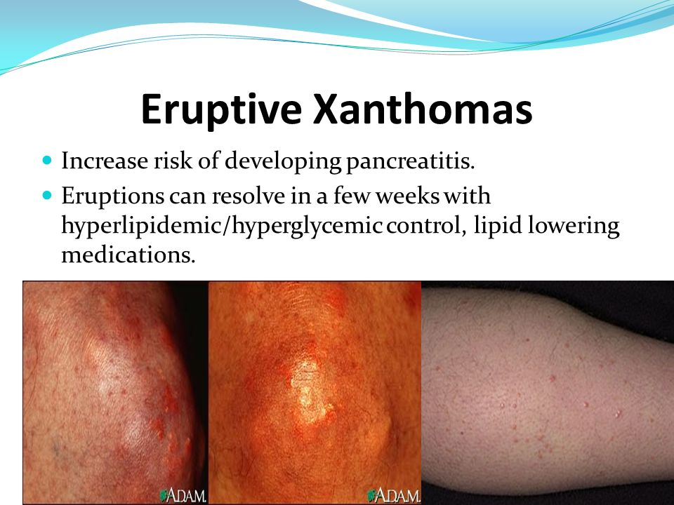 Eruptive Xanthomas Increase risk of developing pancreatitis.