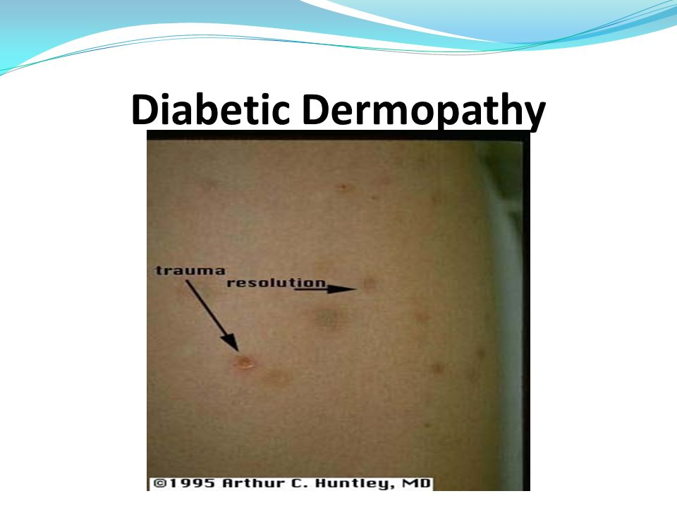 Diabetic Dermopathy -Asympromatic, no treatment necessary.