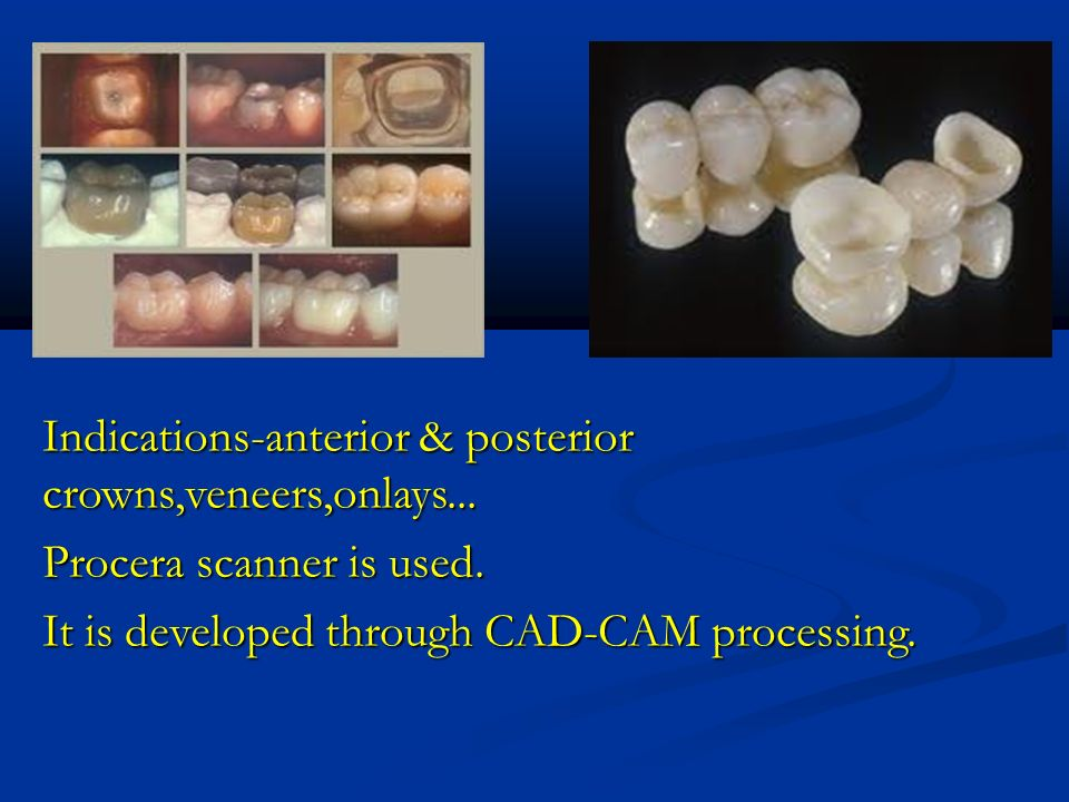 Indications-anterior & posterior crowns,veneers,onlays...