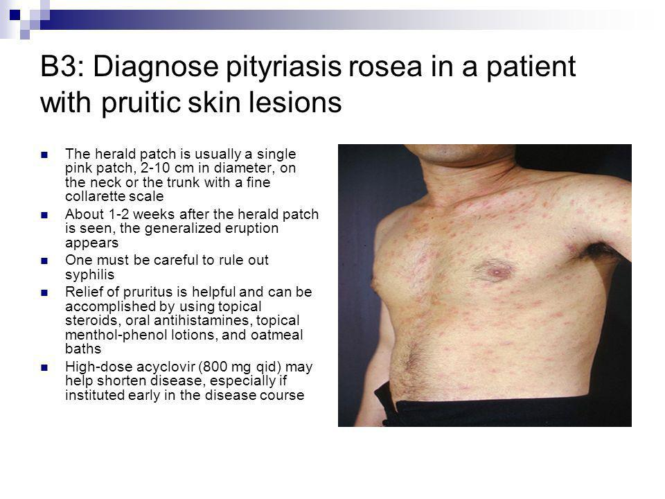 B3: Diagnose pityriasis rosea in a patient with pruitic skin lesions