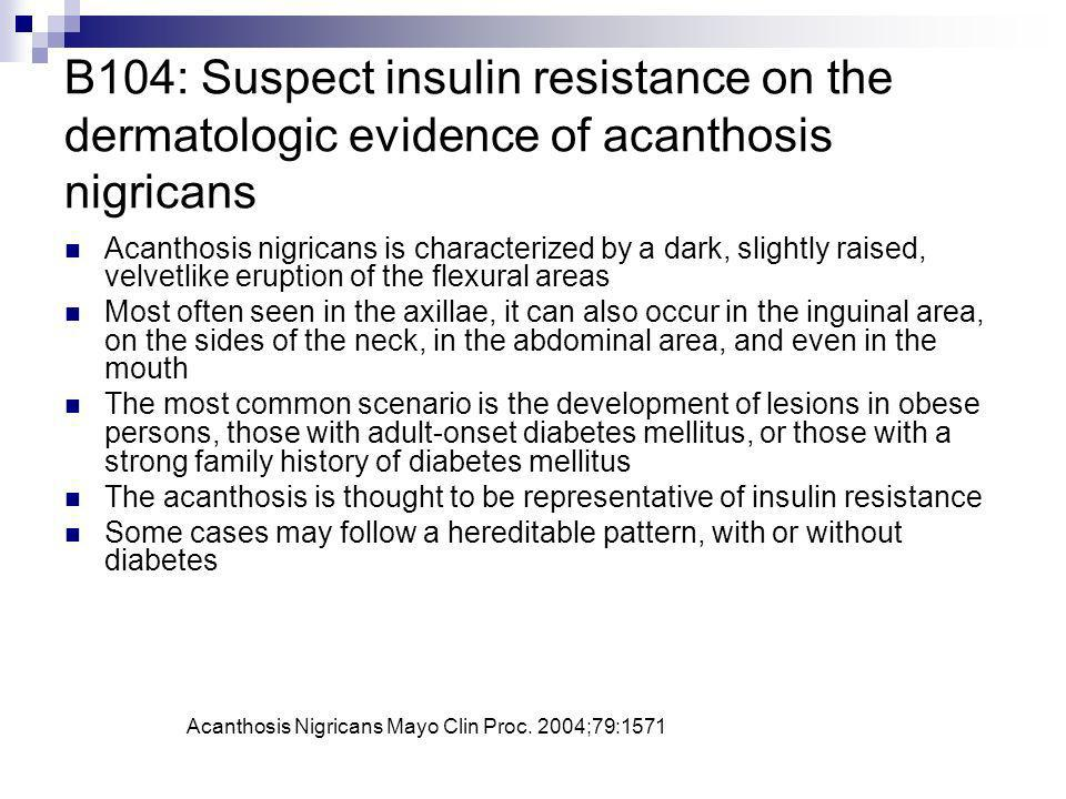 B104: Suspect insulin resistance on the dermatologic evidence of acanthosis nigricans