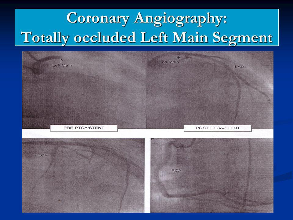 Coronary Angiography: Totally occluded Left Main Segment