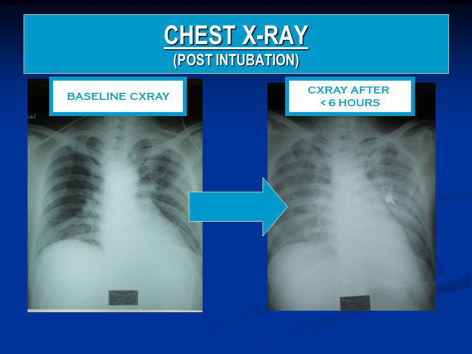 CHEST X-RAY (POST INTUBATION)