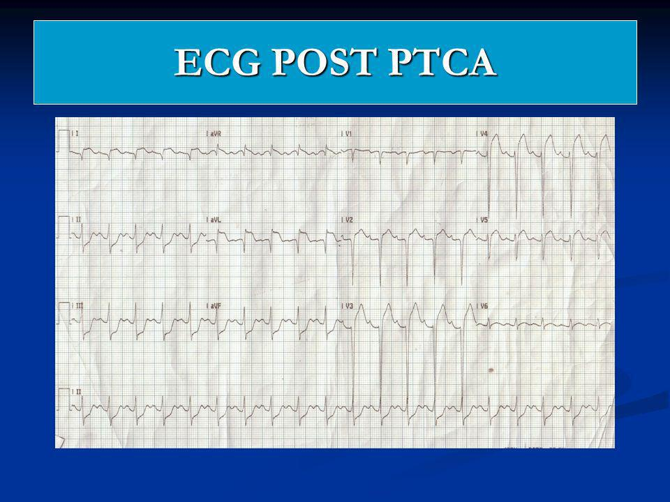 ECG POST PTCA 6/3/08 (1030H) ST Elevation Myocardial Infarction anterolateral wall elevation.