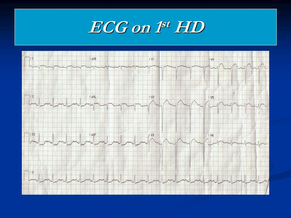 ECG on 1st HD