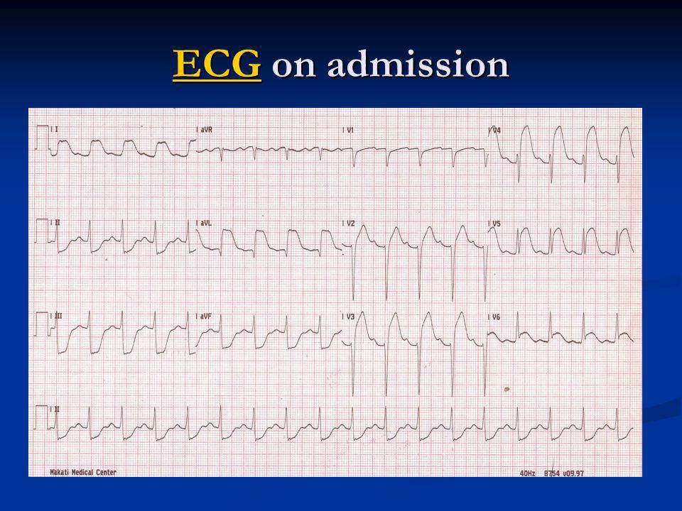 ECG on admission