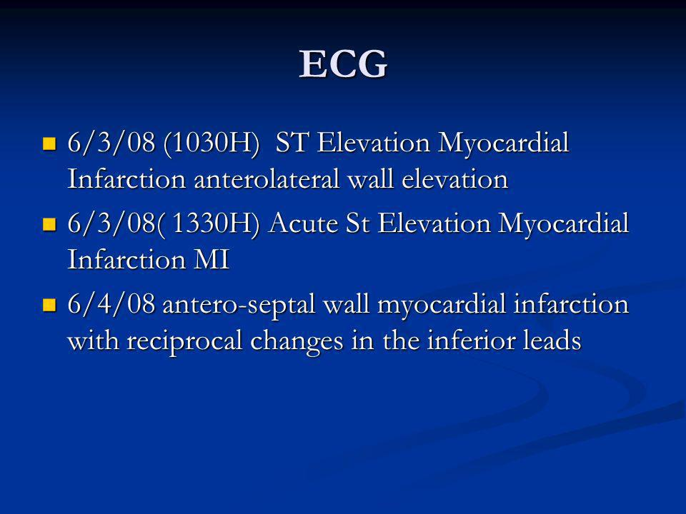 ECG 6/3/08 (1030H) ST Elevation Myocardial Infarction anterolateral wall elevation. 6/3/08( 1330H) Acute St Elevation Myocardial Infarction MI.