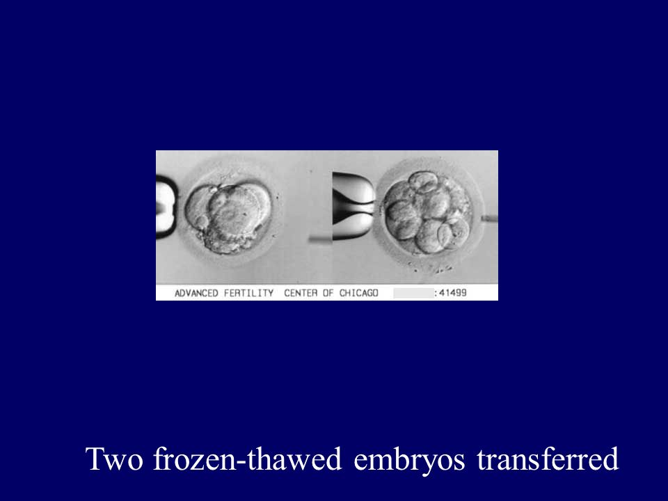 Two frozen-thawed embryos transferred