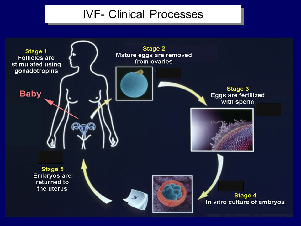 IVF- Clinical Processes