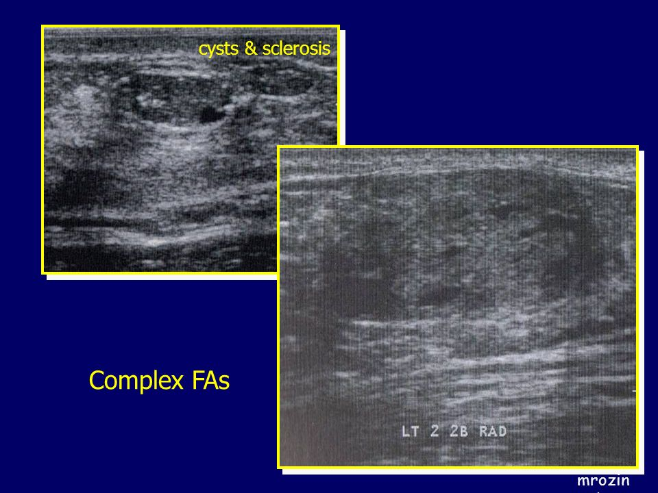 cysts & sclerosis Complex FAs