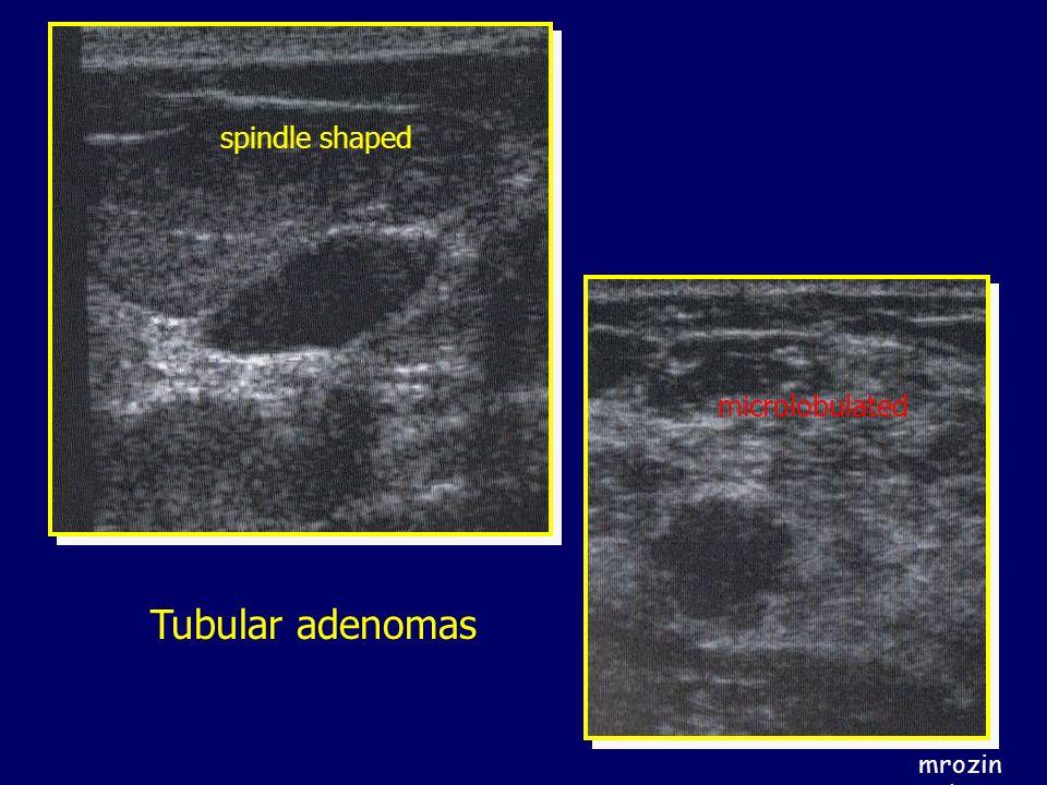spindle shaped microlobulated Tubular adenomas