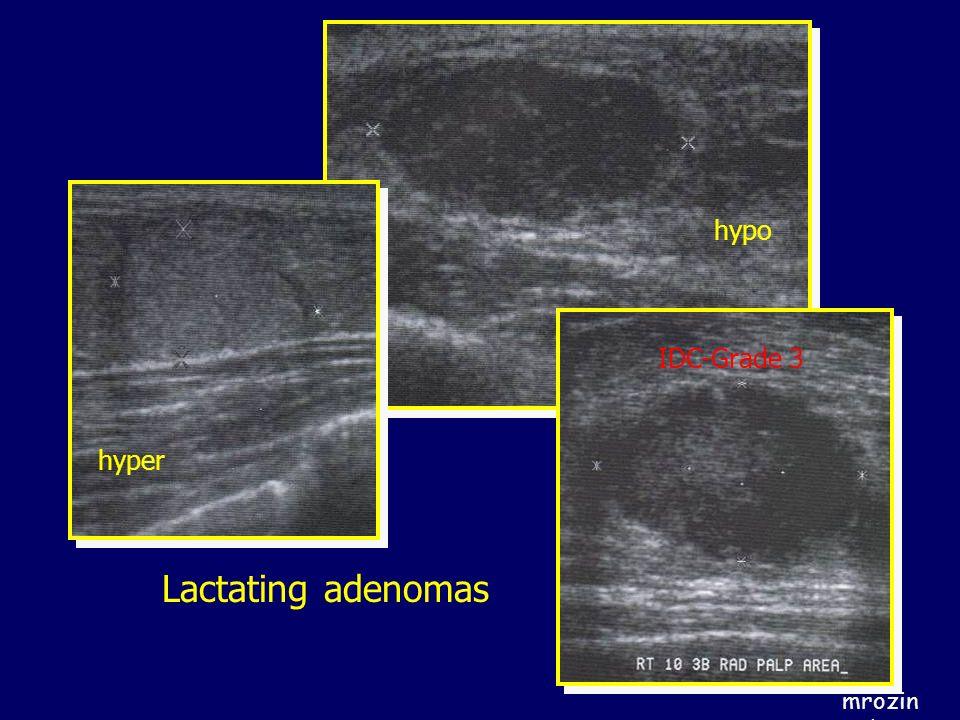 hypo IDC-Grade 3 hyper Lactating adenomas