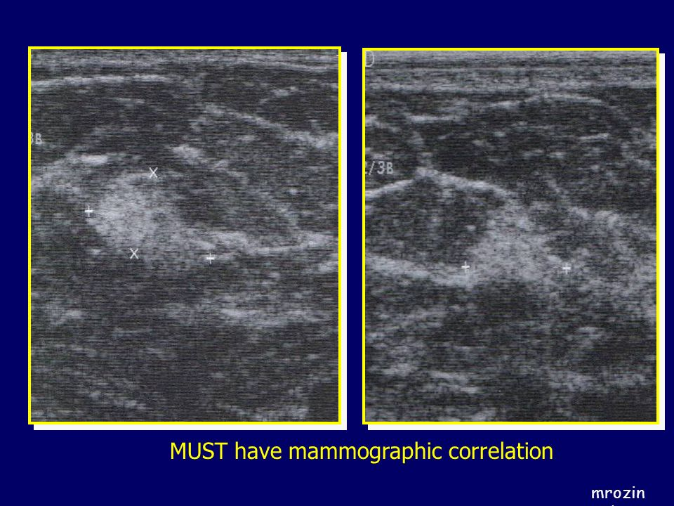 MUST have mammographic correlation