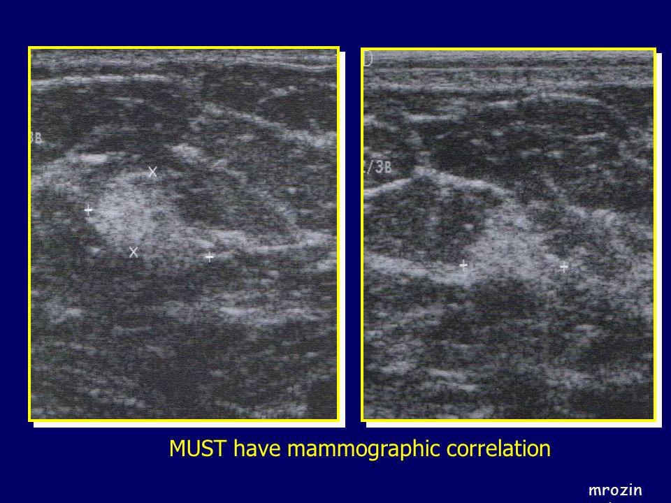 MUST have mammographic correlation