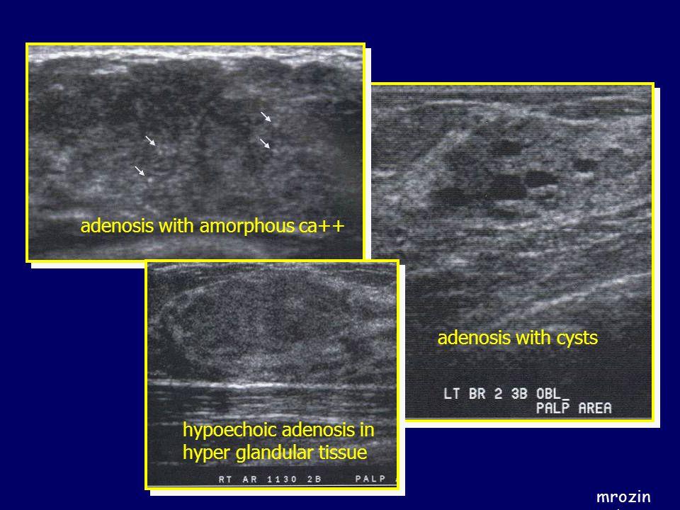 adenosis with amorphous ca++
