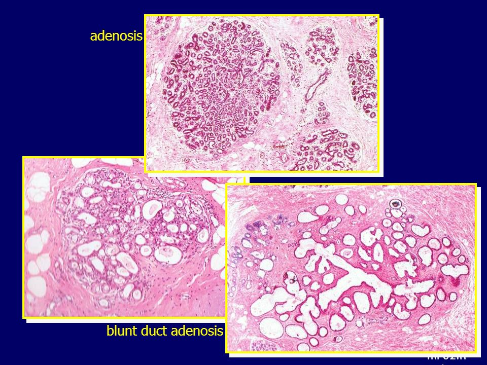 adenosis blunt duct adenosis