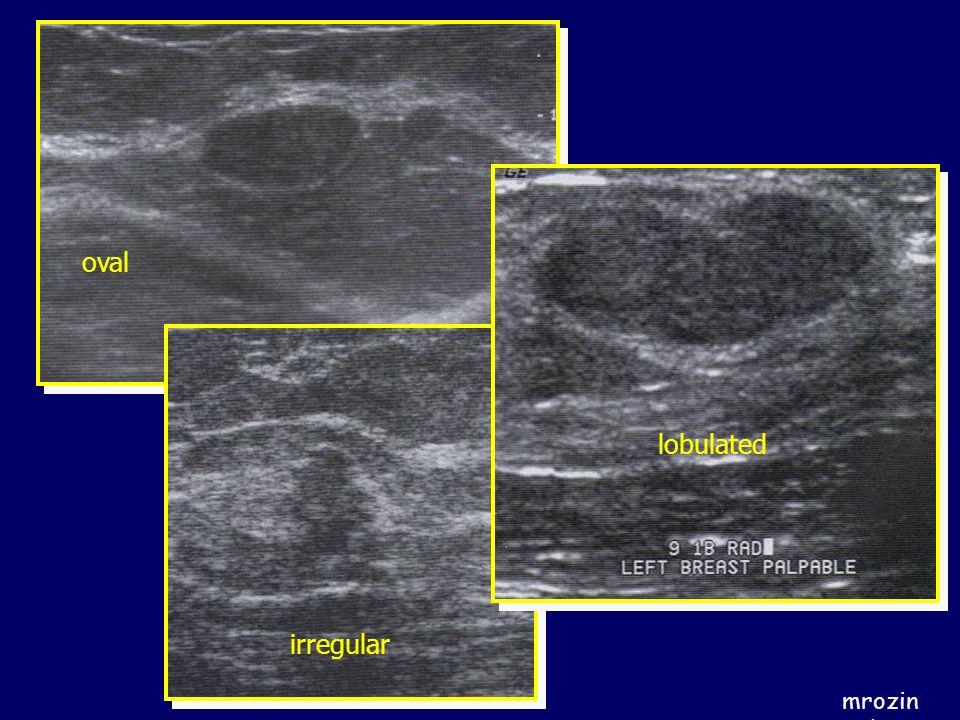 oval lobulated irregular