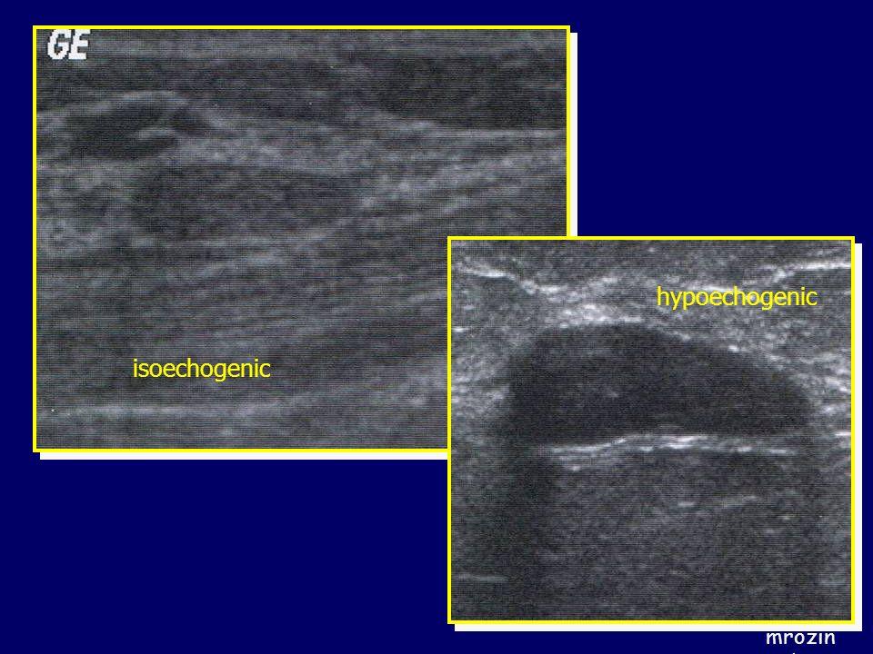 hypoechogenic isoechogenic