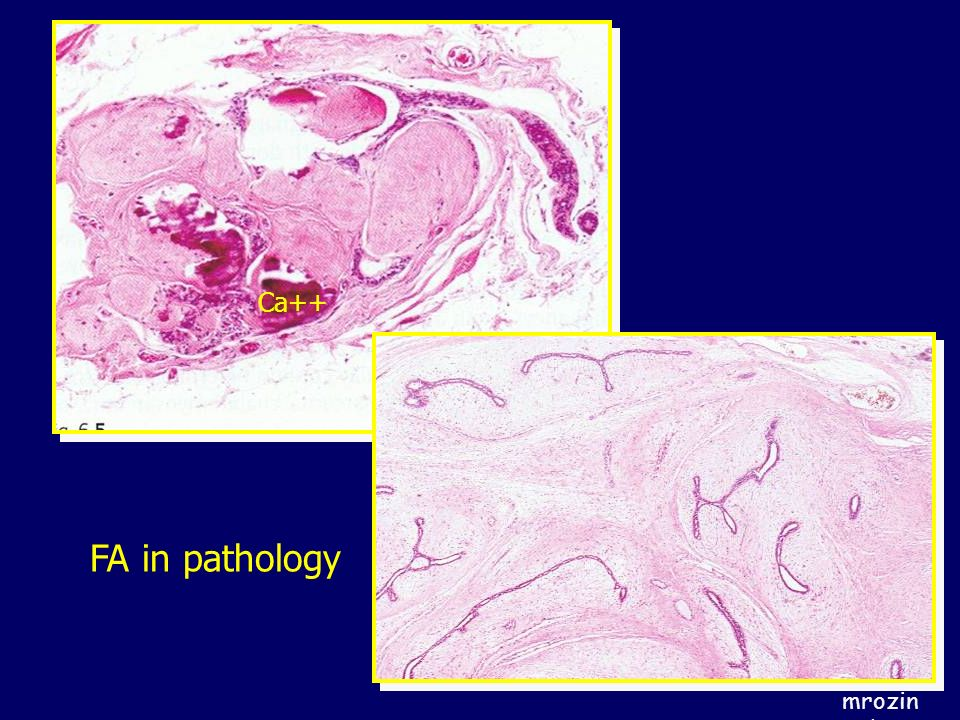 Ca++ FA in pathology
