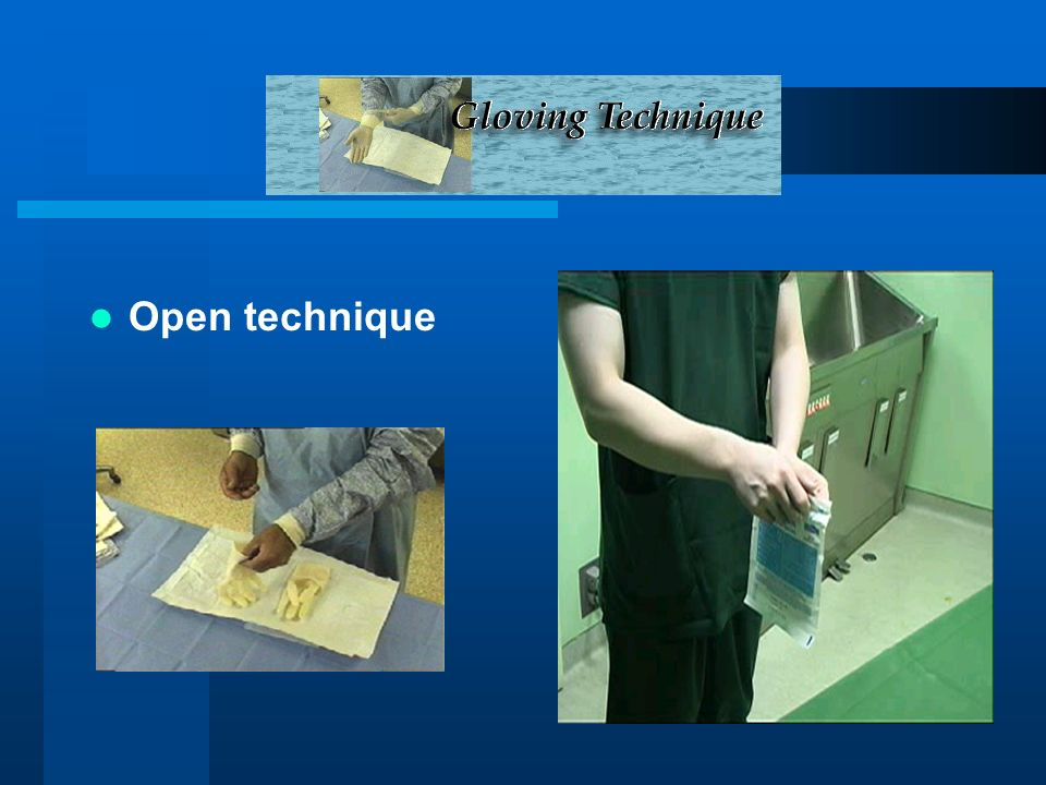 Open technique