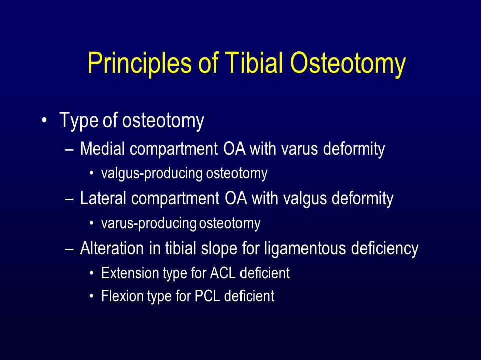 Principles of Tibial Osteotomy