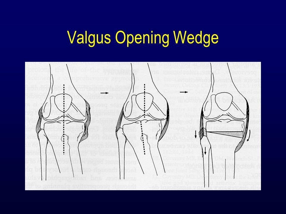 Valgus Opening Wedge