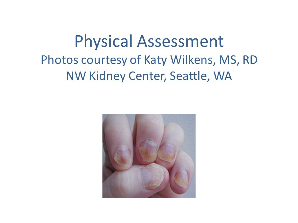Physical Assessment Photos courtesy of Katy Wilkens, MS, RD NW Kidney Center, Seattle, WA