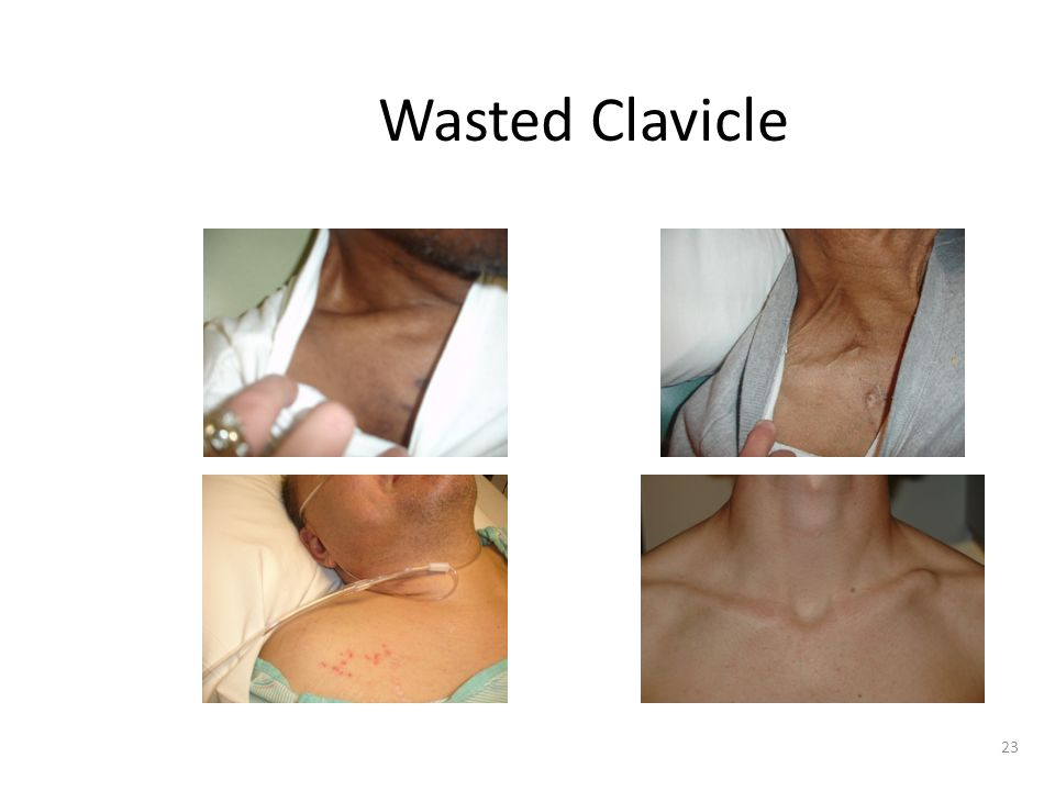 Wasted Clavicle