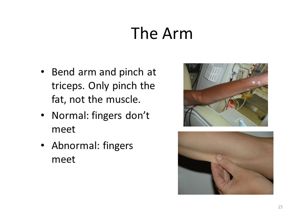 The Arm Bend arm and pinch at triceps. Only pinch the fat, not the muscle. Normal: fingers don't meet.