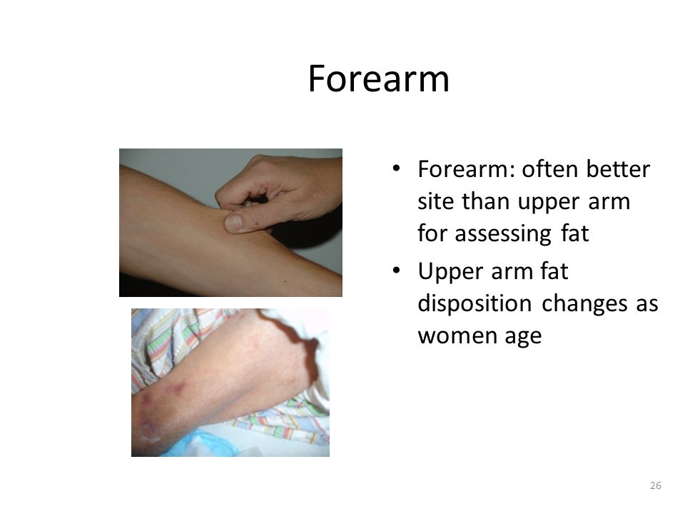 Forearm Forearm: often better site than upper arm for assessing fat