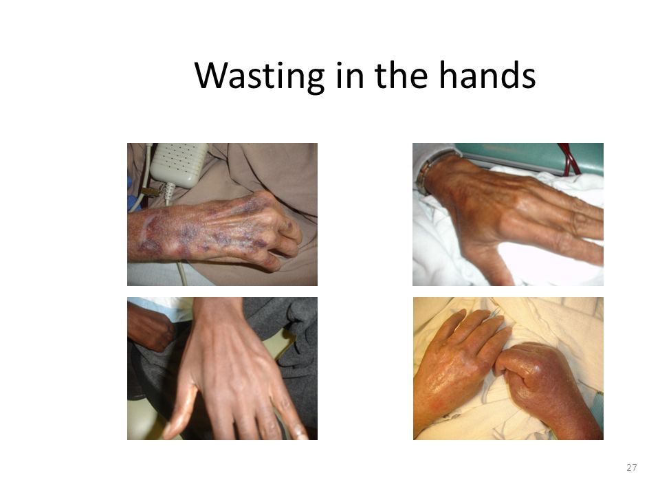 Wasting in the hands