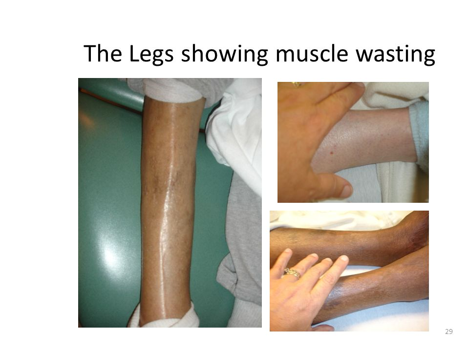 The Legs showing muscle wasting