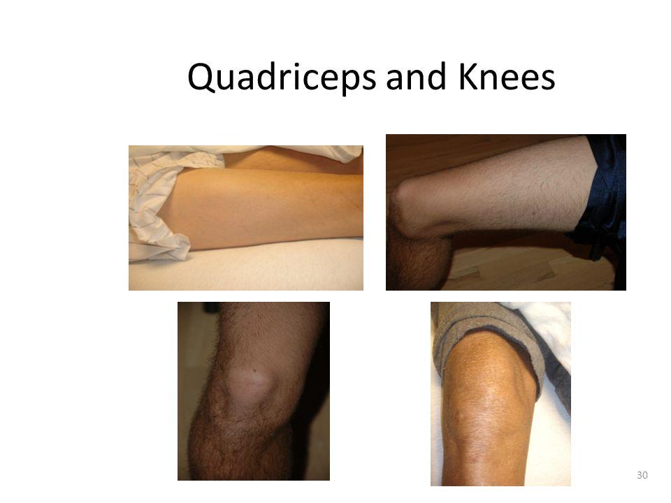 Quadriceps and Knees
