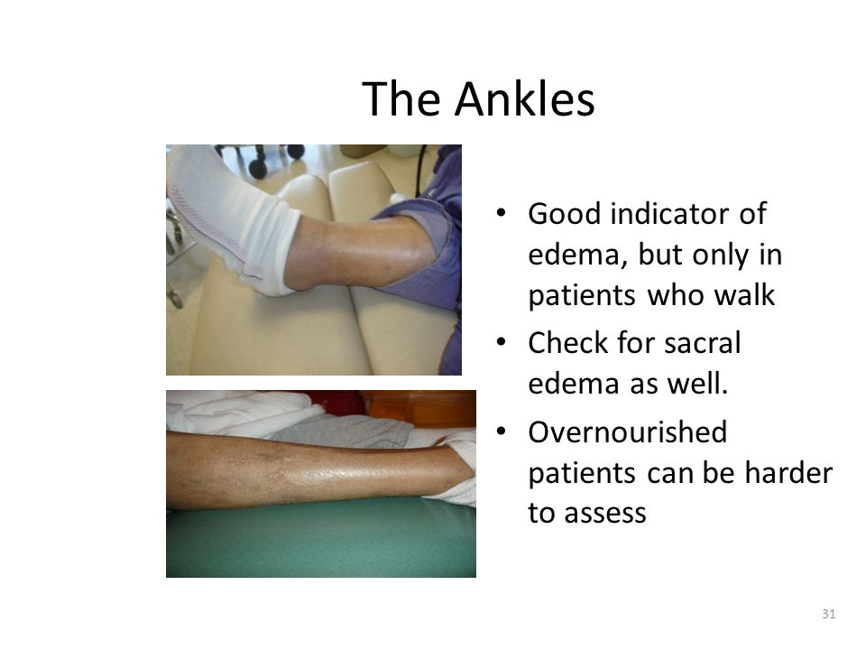 The Ankles Good indicator of edema, but only in patients who walk