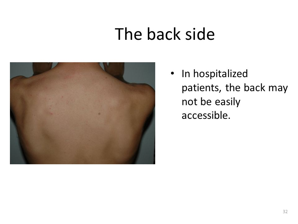 The back side In hospitalized patients, the back may not be easily accessible.